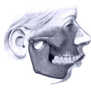 Deformidade facial padrão Classe II
