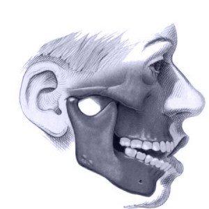 Excesso vertical da face com ou sem mordida aberta anterior