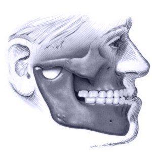 Deformidade facial padrão Classe III