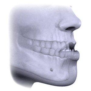 Atresia transversal da maxila – Mordida cruzada